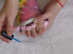 Toe Nail Art with cast